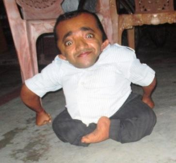 ENABLE MOHIT TO OVERCOME HIS DISABILITY.