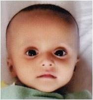 7-month-old needs a Heart Surgery