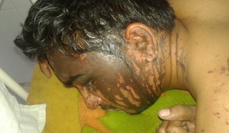 Yet another acid attack: One family's battle for treatment and justice