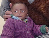 Gift a life to Yashwant- 2 month old baby with VSD