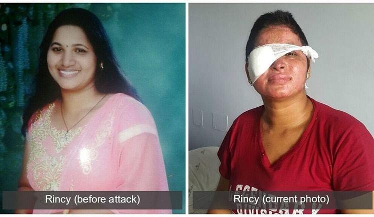 APPEAL TO HELP ACID ATTACK SURVIVOR RINCY